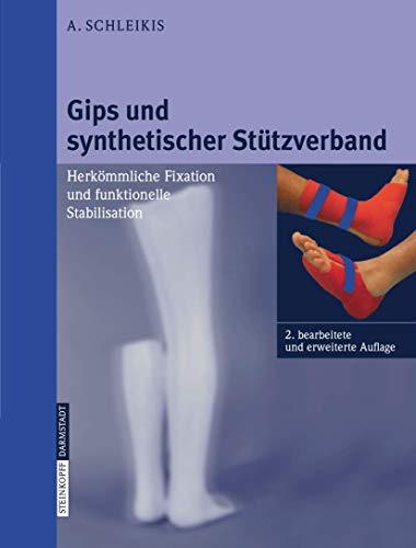 9783798514843: Gips und synthetischer Stützverband: Herkömmliche Fixation und funktionelle Stabilisation (German Edition)