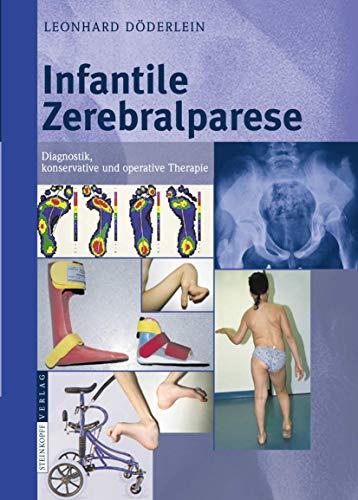 9783798517004: Infantile Zerebralparese: Diagnostik, konservative und operative Therapie (German Edition)