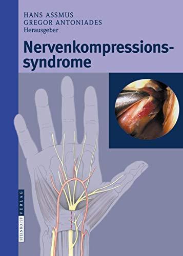 9783798518186: Nervenkompressionssyndrome (German Edition)