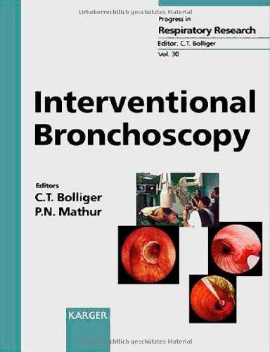 9783805568517: Interventional Bronchoscopy (Progress in Respiratory Research)