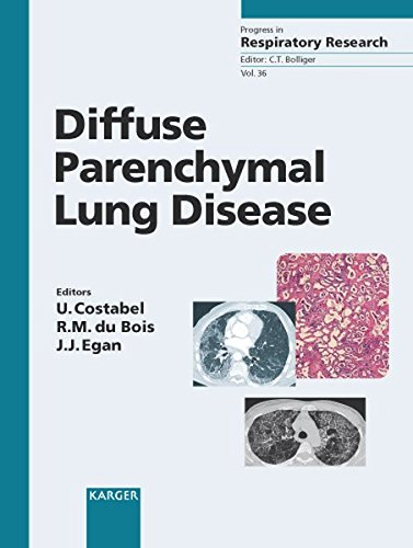 9783805581530: Diffuse Parenchymal Lung Disease (Progress in Respiratory Research, Vol. 36)