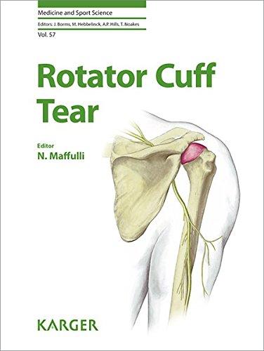 Rotator Cuff Tear: N. Maffulli