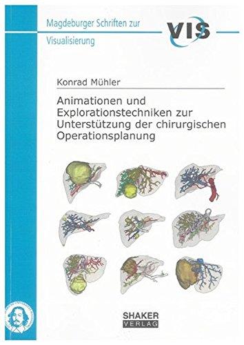 Animationen und Explorationstechniken zur Unterstützung der chirurgischen Operationsplanung: ...