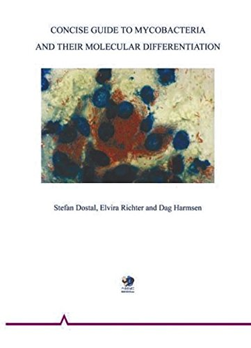 Concise guide to mycobacteria and their molecular differentiation German Edition: Stefan Richter ...