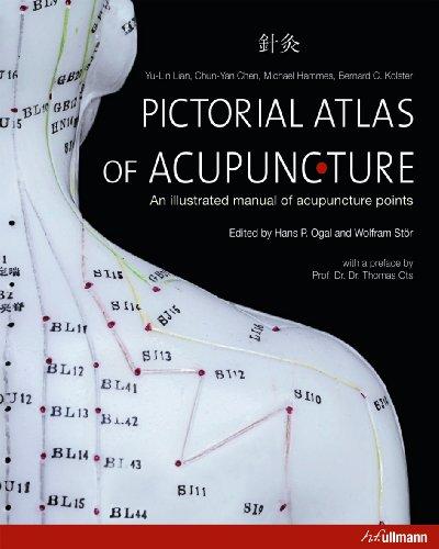Pictorial Atlas of Acupuncture (Ullmann): Yu-Lin Lian; Chun-Yan