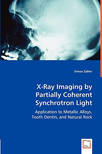 X-Ray Imaging by Partially Coherent Synchrotron Light: Application to Metallic Alloys, Tooth Dentin...