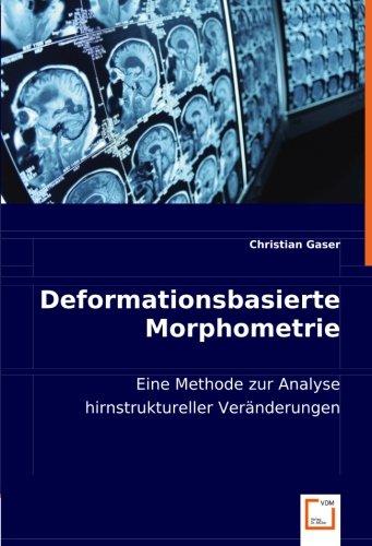 Deformationsbasierte Morphometrie: Christian Gaser