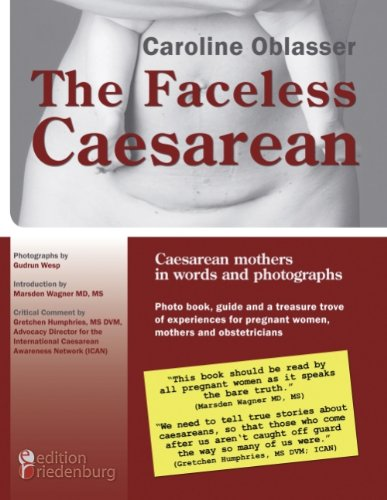 9783837075601: The Faceless Caesarean - Caesarean mothers in words and photographs. Photo book, guide and a treasure trove of experiences for pregnant women, mothers and obstetricians