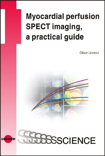 9783837412635: Myocardial perfusion SPECT imaging, a practical guide