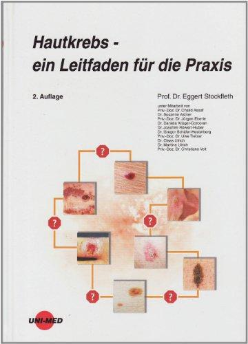 9783837420425: Hautkrebs - ein Leitfaden für die Praxis