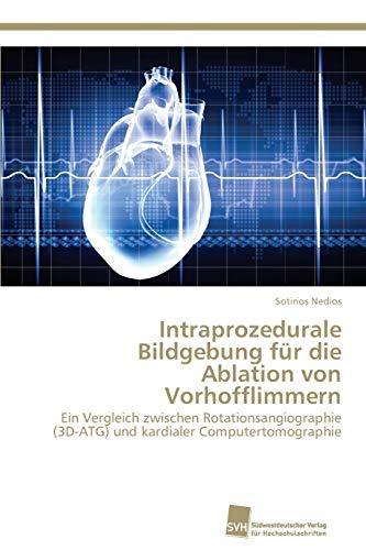 9783838137933: Intraprozedurale Bildgebung für die Ablation von Vorhofflimmern