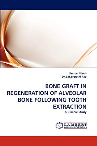 9783838379722: BONE GRAFT IN REGENERATION OF ALVEOLAR BONE FOLLOWING TOOTH EXTRACTION: A Clinical Study