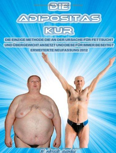 9783842372320: Die Adipositas Kur (German Edition)