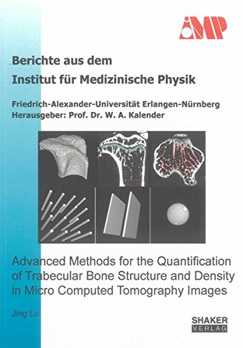 Advanced Methods for the Quantification of Trabecular Bone Structure and Density in Micro Computed ...