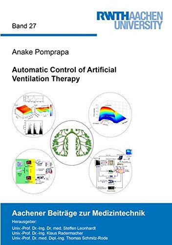 9783844036428: Automatic Control of Artificial Ventilation Therapy (Aachener Beitrage zur Medizintechnik)