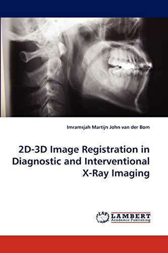2D-3D Image Registration in Diagnostic and Interventional X-Ray Imaging: Imramsjah Martijn John van...