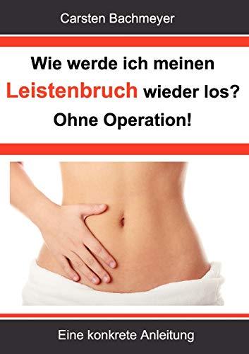 9783844813524: Wie werde ich meinen Leistenbruch wieder los? Ohne Operation! (German Edition)