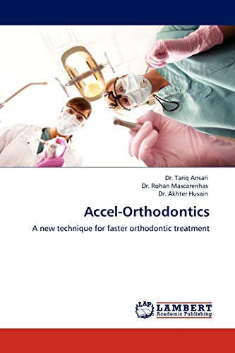 9783845404578: Accel-Orthodontics: A new technique for faster orthodontic treatment