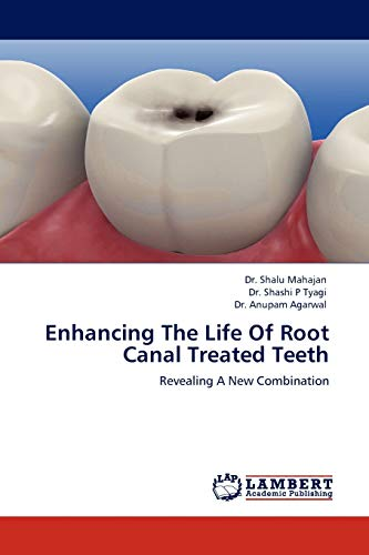 9783845422039: Enhancing The Life Of Root Canal Treated Teeth: Revealing A New Combination