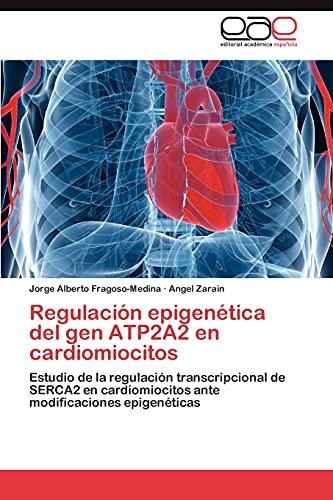 Regulacion Epigenetica del Gen Atp2a2 En Cardiomiocitos: ngel Zarain