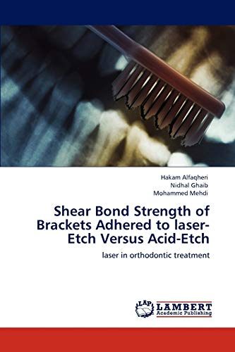 9783846524213: Shear Bond Strength of Brackets Adhered to laser-Etch Versus Acid-Etch: laser in orthodontic treatment