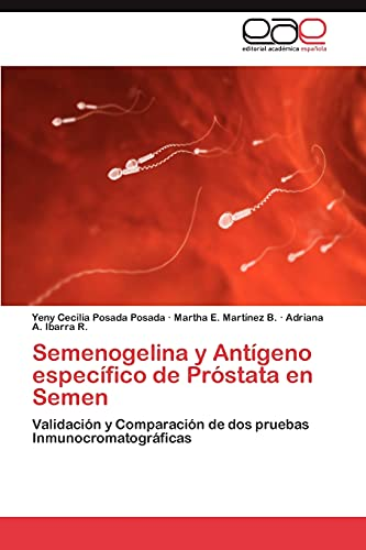 9783846574249: Semenogelina y Antígeno específico de Próstata en Semen: Validación y Comparación de dos pruebas Inmunocromatográficas (Spanish Edition)