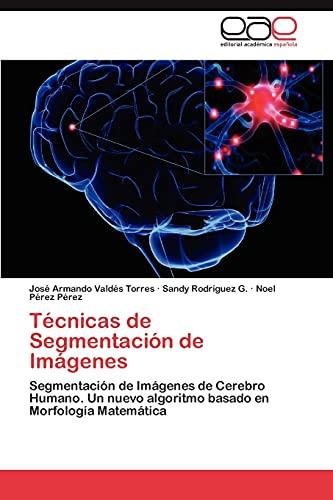 9783847361534: Técnicas de Segmentación de Imágenes: Segmentación de Imágenes de Cerebro Humano. Un nuevo algoritmo basado en Morfología Matemática (Spanish Edition)