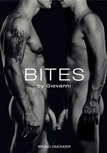 9783861876960: Bites