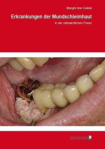 Erkrankungen der Mundschleimhaut: in der zahnärztlichen Praxis (Paperback): Margrit-Ann Geibel