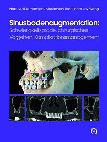 Sinusbodenaugmentation: Nobuyuki Yamamichi