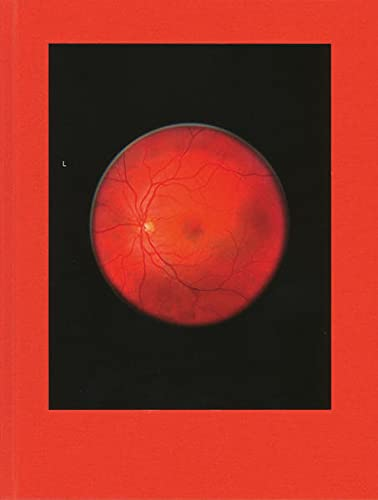 Michael Subotzky: Retinal Shift: Steidl