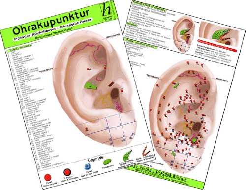 9783869570860: Ohrakupunktur - Indikation: Chronische Polyarthritis - chinesische Ohrakupunktur. Medizinische Taschen-Karte