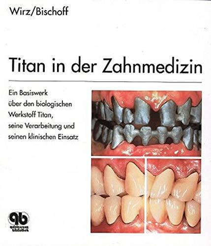 Titan in der Zahnmedizin: Jakob Wirz