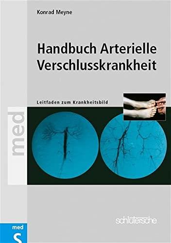 9783877066942: Handbuch Arterielle Verschlußkrankheiten. Leitfaden zum Krankheitsbild