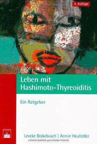 9783886039173: Leben mit Hashimoto-Thyreoiditis: Ein Ratgeber