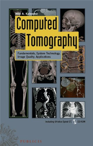 Computed Tomography: Fundamentals, System Technology, Image Quality,: Willi A. Kalender