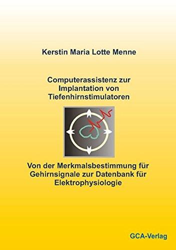 Computerassistenz zur Implantation von Tiefenhirnstimulatoren: Kerstin Menne