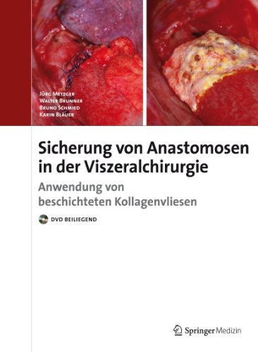 9783899352504: Anastomosensicherung in der Visceralchirurgie (German Edition)