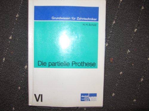 9783921280065: Die partielle Prothese