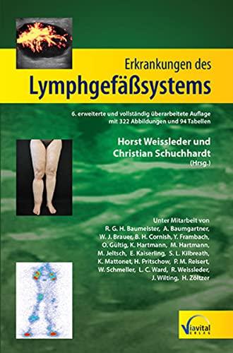 Erkrankungen des Lymphgefäßsystems: Horst Weissleder