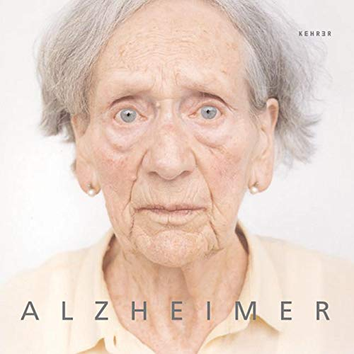 9783936636345: Alzheimer (German Edition)