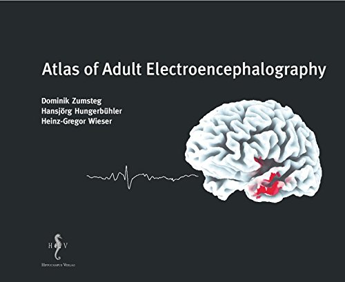 9783936817157: Atlas of Adult Electroencephalography