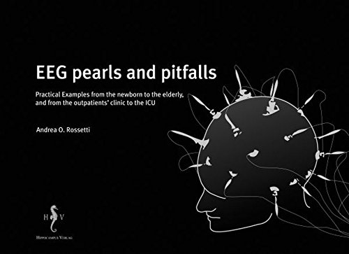 9783936817393: EEG pearls and pitfalls