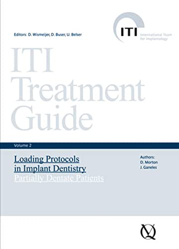 ITI Treatment Guide. Volume 2: Loading Protocols: Buser, D.; Wismeiher,