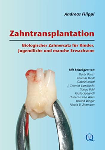 Zahntransplantation: Andreas Filippi