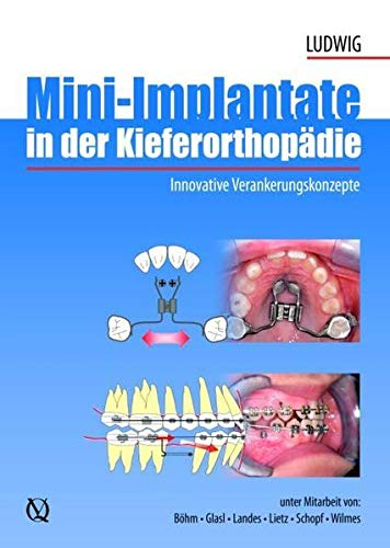 Mini-implants in Orthodontic: Innovative Anchorage Concepts: Bjorn Ludwig