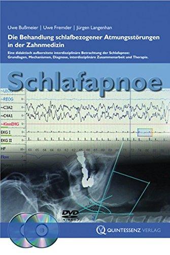 Sleep Apnea: Treatment of Sleep-Related Breathing Disorders in Dentistry: Quintessence Pub Co