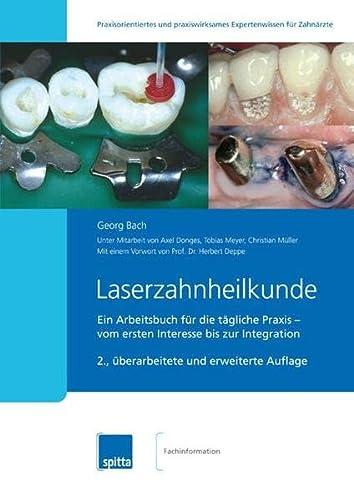Laserzahnheilkunde: Georg Bach