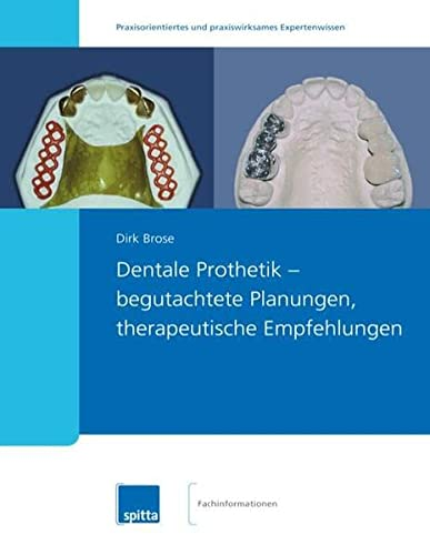 Dentale Prothetik - begutachtete Planungen, therapeutische Empfehlungen: Dirk Brose