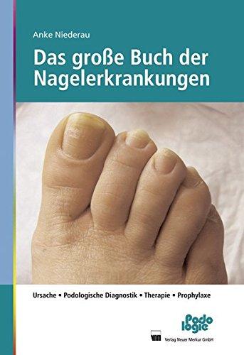 9783954090037: Das große Buch der Nagelerkrankungen: Ursache, Podologische Diagnostik, Therapie, Prophylaxe